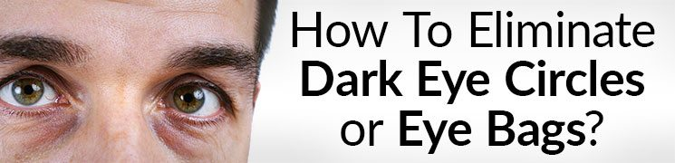 7 Tips To Get Rid Of Black Under The Eyes