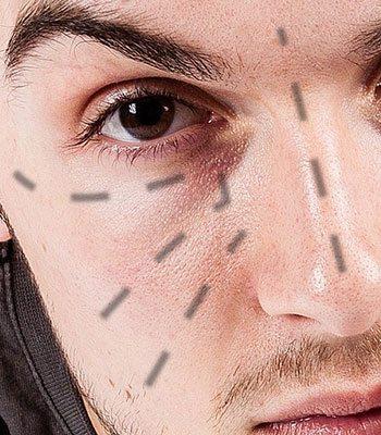how to stop dark under eyes men