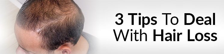 3 Tips To Deal With Hair Loss | Attract Women While BALDING Increase Confidence With Thinning Hair