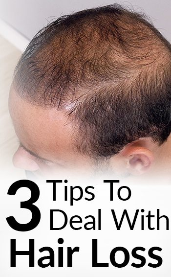3 Hair Loss Treatment Options | Attract Women While BALDING