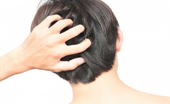 itchy scalp hair loss